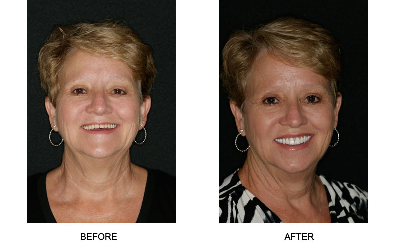 Dentures - Before and After