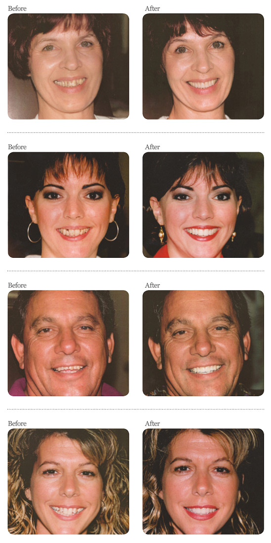 Smile Gallery - Sanford Dental